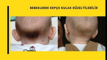 Bebeklerde Kepçe Kulak veya Kupa Kulak Deformitesi Düzeltilebilir