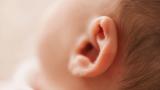 Bebeklerde Kepçe Kulak Probleminde Bant Kullanımı