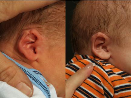 bebek kulak şekil bozuklukları tedavisi