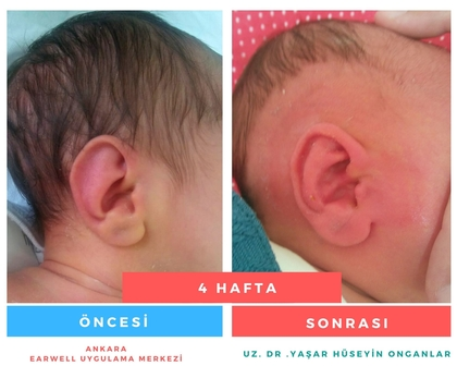 kepçe kulak düzeltme
