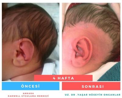kulak şekil bozukluğu var