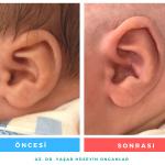 earwell fiyatı